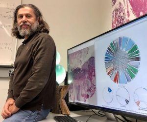 Diagnostic consensus for cancer is possible through image search using AI