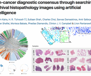 Waterloo Researchers are Accelerating the Cancer Diagnosis Process via Artificial Intelligence (AI)